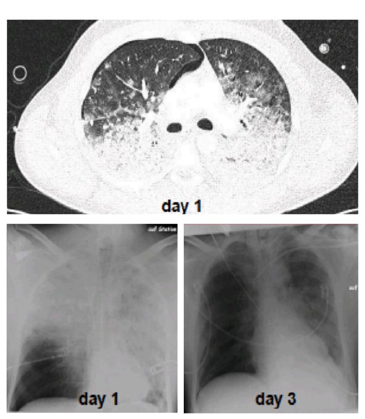 Imágenes de la evolución de un paciente utilizando EVONE