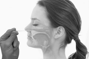 Test Antigeno Acceso nasofaringeo